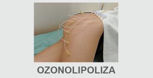 ozonolipoliza tkanki tłuszczowej