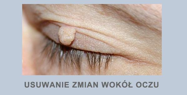 usuwanie pieprzyków zmian skórnych brodawek wirusowych znamiona skórne znamienia