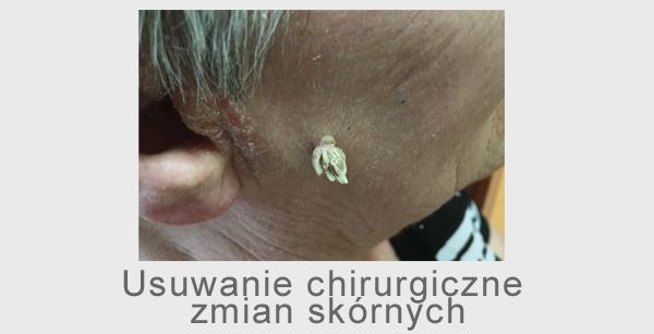 chirurgia zmian skórnych wycinanie znamion znamiona barwnikowe brodawki