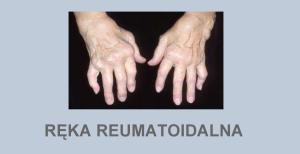 Ręka reumatoidalna