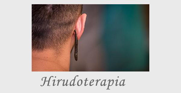 Hirudoterapia
