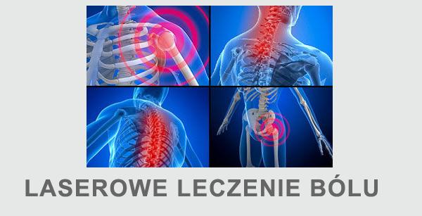 laserowe leczenie bólu laseroterapia stawów zmiany zwyrodnieniowe ból stawu ból kręgosłupa
