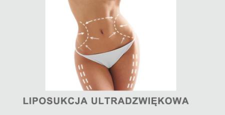 Liposukcja ultradźwiękowa kawitacyjna