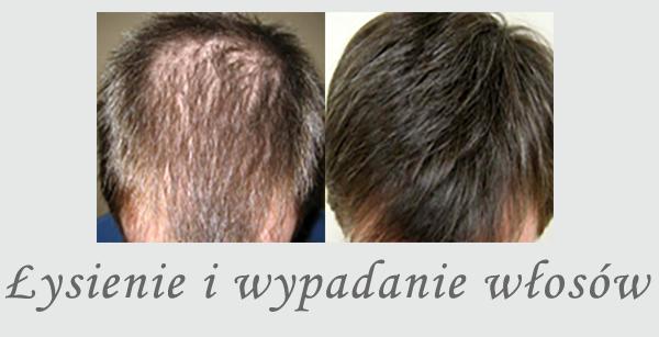 Łysienie i wypadanie włosów