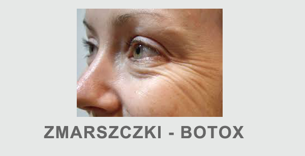 Zmarszczki wokół oczu botox